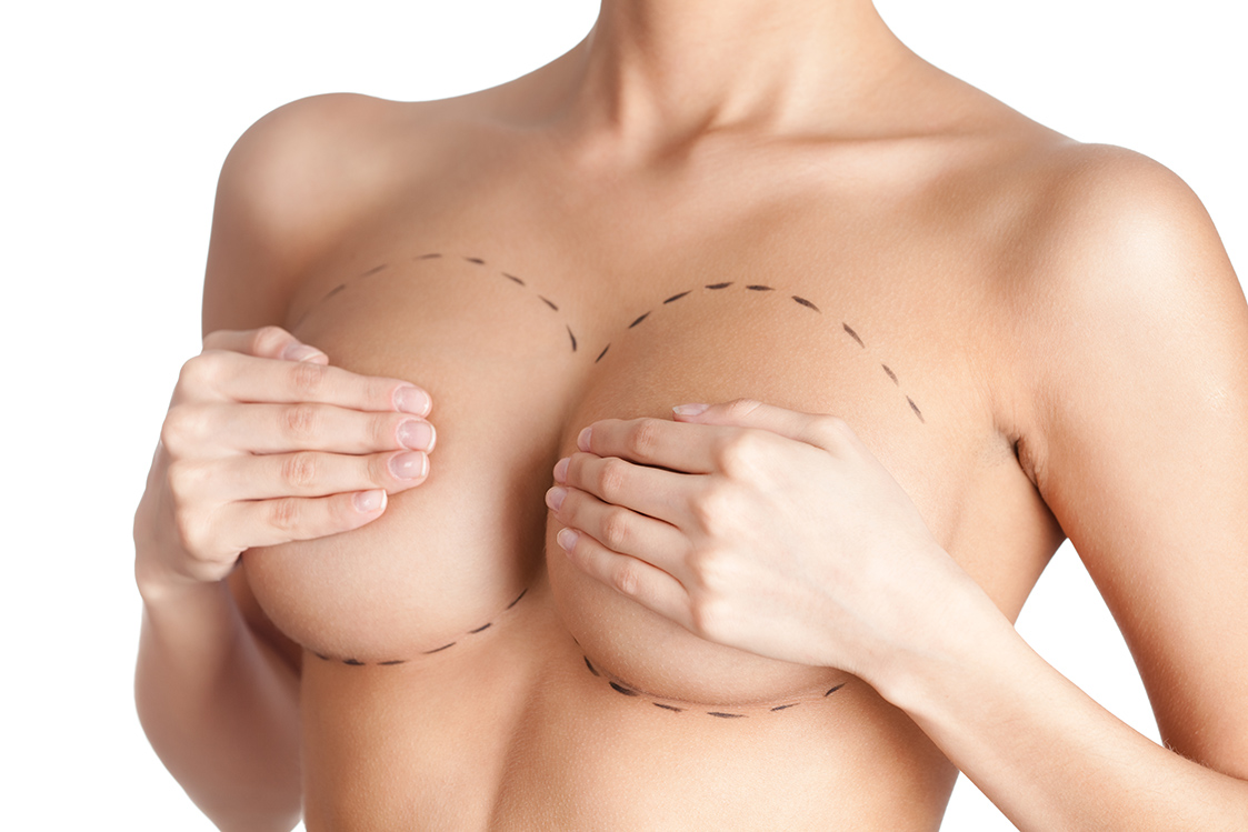 breast_implants