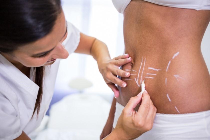 ¿Cuáles son las diferencias entre la liposucción y la abdominoplastia?