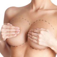 clinica reduccion senos